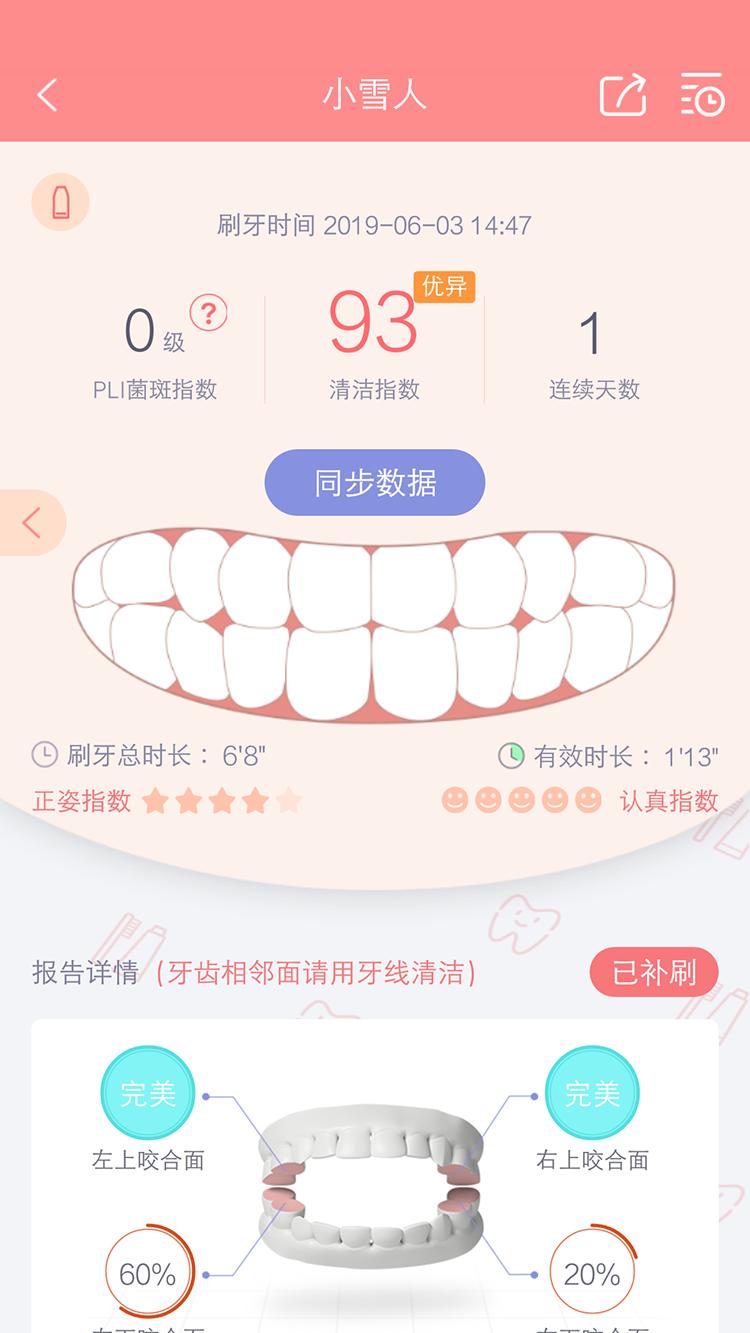护牙者图2